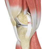 Ligament Injuries