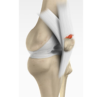 Quadriceps Tendon Rupture