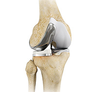Knee Replacement Imperial Valley, CA | Knee Arthroscopy Yuma AZ